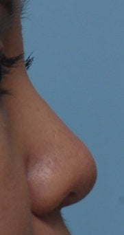 Non Surgical Rhinoplasty after 308302