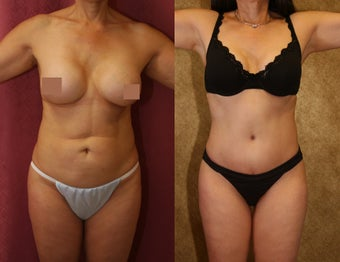 tummy tuck before 304698