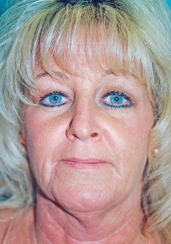 Lower Facelift & Neck Lift (w/ Liposuction) + Blepharoplasty before 280774