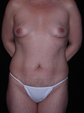 Abdominoplasty and breast augmentation