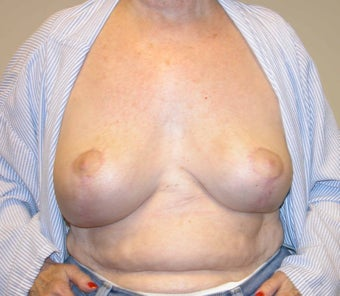 Breast Reduction after 296025