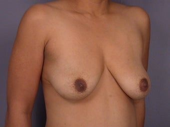 Breast Lift / Breast Augmentation before 291080