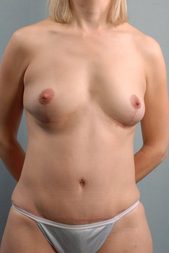 Breast Lift/Tummy Tuck/Liposuction/Umbilical Hernia Repair after 240928