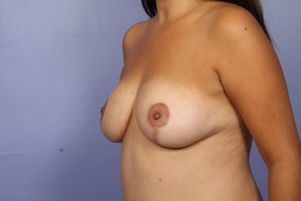 Breast Augmentation after 467223