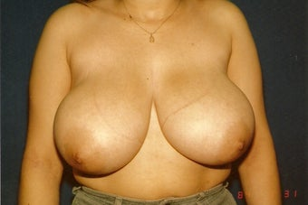 Breast Reduction before 401277