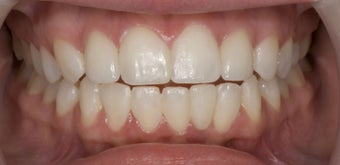 Porcelain Veneers and Composite Bonding after 374753