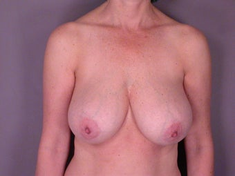 Breast Reduction  before 306342