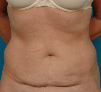 Coolsculpting after 371019