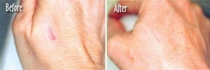 Microdermabrasion of Scars on Hands before 6393