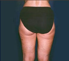 Smartlipo after 401658