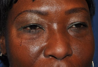 Blepharoplasty (Upper and Lower eyelids) before 295578