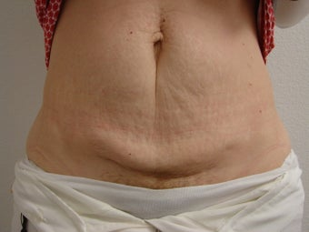 Tummy Tuck before 344813