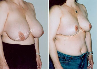 Breast Reduction before 243745
