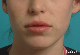 Lip Augmentation after 273491