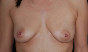 Breast Augmentation before 483512