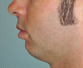 Chin Augmentation before 365432