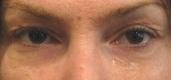 Upper Blepharoplasty  before 175259