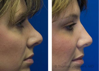 Revision Rhinoplasty after 234401