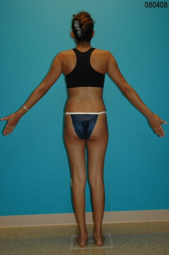 Liposculpture of Hips after 272111