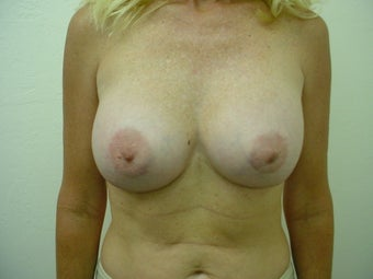 Breast Implants after 241859