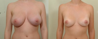 Breast Reduction before 106762