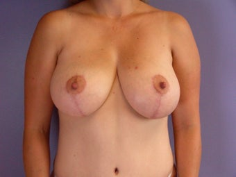 Breast Lift  after 311053