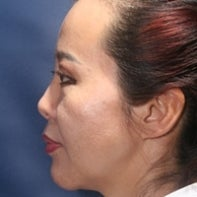 Asian Rhinoplasty after 448665