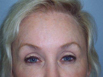 Brow lift after 593748