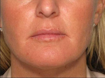 Juvederm in the Lips