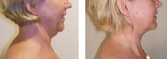 Neck Lift before 229643
