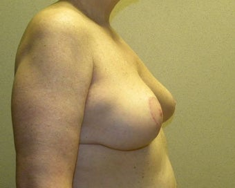 Breast Lift 411125