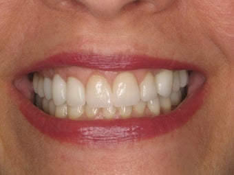 Porcelain Veneers 510792