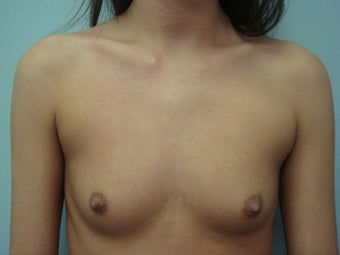 Breast Augmentation before 140679