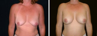 35 year old female, breast augmentation, San Francisco, California before 628367