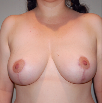Vertical Breast Lift after 275502