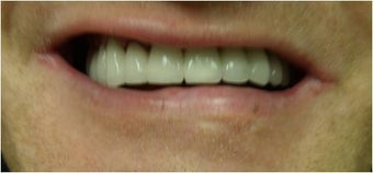 Full mouth Rehabilitation (Smile Makeover) after 390179