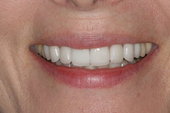 Porcelain Veneers after 213079