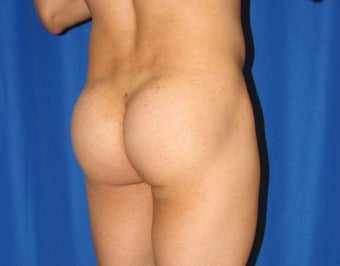 Buttocks Augmentation after 421480