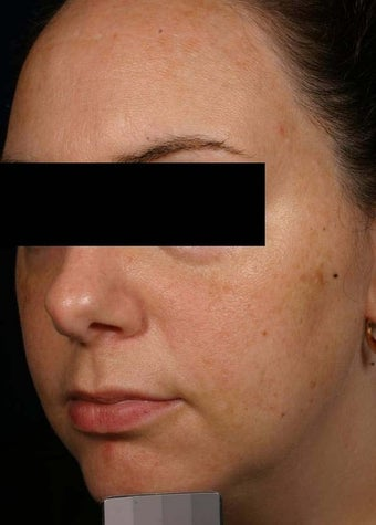 Melasma before 136699
