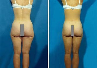 Liposuction before 636232