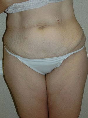 Abdominoplasty with liposuction of hips, flanks, medial thighs before 406075