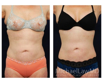 Liposuction before 629035