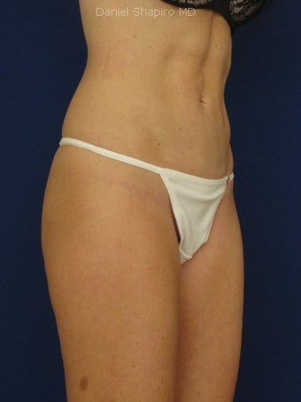 Tummy Tuck Revision with Vaser Liposuction of the abdomen 422791