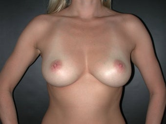 Breast Augmentation before 110077