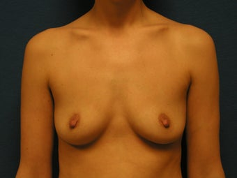 Breast Augmentation before 475887