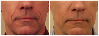 Restylane to Smile Lines before 480650