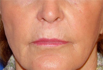 Juvederm for Lip Border and Lip Lines before 123684