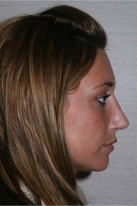 Rhinoplasty after 442949