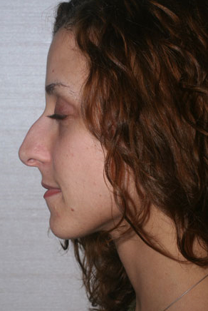 Rhinoplasty  before 448507