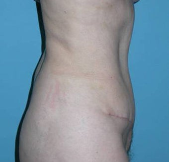 Tummy tuck after 111941